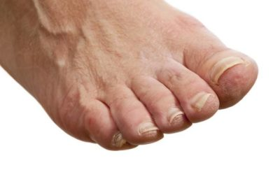 Illustration of Foot Skin Itch Until Redness