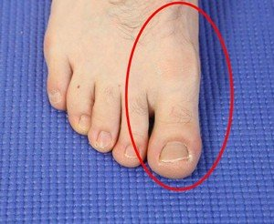 Illustration of Tingling And Throbbing Of The Left Big Toe