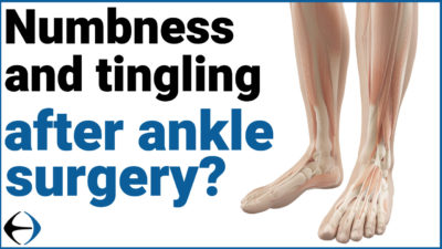 Illustration of Tingling Feet Are Numb After Surgery?