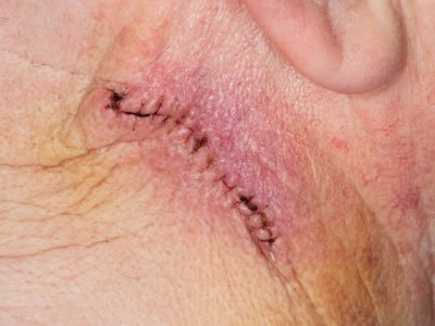 Illustration of How Long After The Sterile Incision After The KB Is Healed?