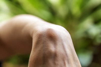 Illustration of Lumps On The Back Of The Wrist When Bent?