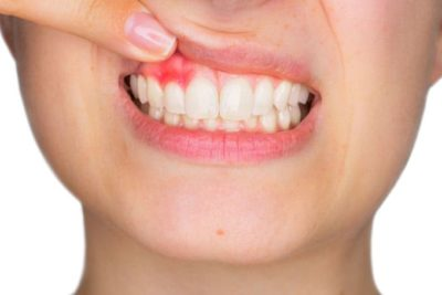 Illustration of How To Deal With Swollen And Bleeding Gums After Using Dental Prosthesis?