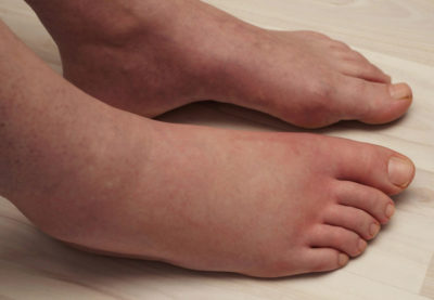 Illustration of Causes Swollen Feet When Tired?