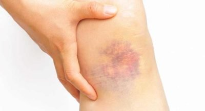 Illustration of Causes Of Bruising On The Legs?