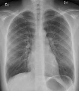 Illustration of The Results Of The Chest X-ray PA