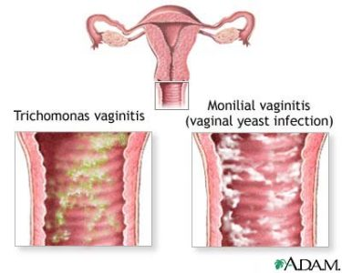 Illustration of How To Deal With Itchy Vaginal Discharge?