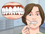 The Medicine For Swollen Gums Accompanied By Pain For Nursing Mothers?