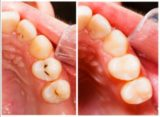 How To Deal With Cavities In The Upper Part?