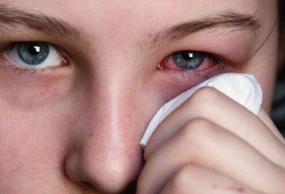 Illustration of The Left Eye Hurts And Twitches And Canker Sores?