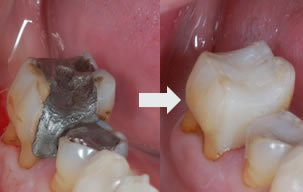 Illustration of Root Canal Treatment And Dental Fillings?