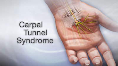 Illustration of Is Carpal Tunnel Syndrome Dangerous?