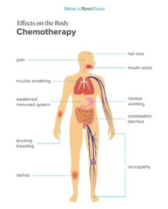 Illustration of How To Deal With Bleeding After Chemotherapy?