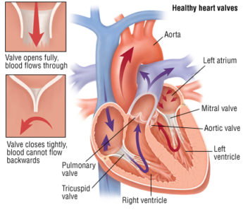 Illustration of Do Abnormalities In The Heart Valve Have To Be Operated On?