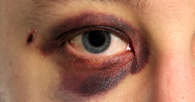 Illustration of The Cause Of Bruised Eyes After Hitting During An Accident Can Not Be Opened?