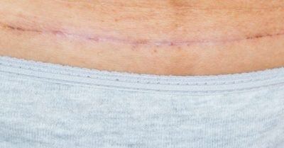 Illustration of The Cause Of A Caesarean Scar 2 Weeks Ago Was Pus Discharge?