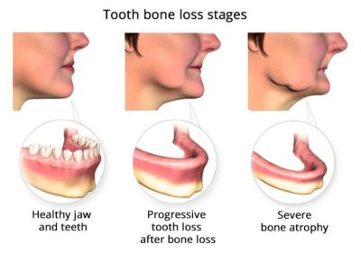 Illustration of There Is An Empty Cavity From The Extraction Of The Left Upper Tooth?