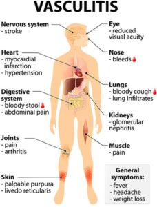 Illustration of Treatment And Causes Of Vascular Inflammation (HSP)?