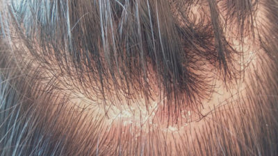 Illustration of How To Deal With Patches On The Scalp Like Mushrooms?
