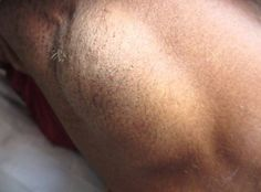 Illustration of The Existence Of Lumps Like Seeds In The Armpit Area?