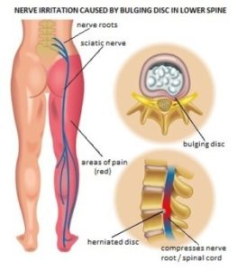 Illustration of Numbness And Pain In The Arms And Legs?