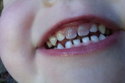 Illustration of Children's Teeth Are Bruised And Blackened After Falling?