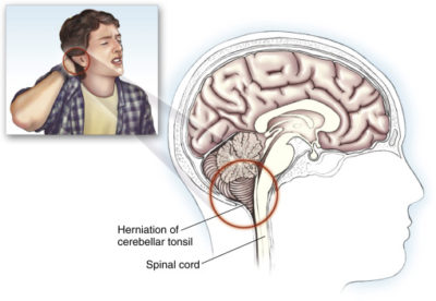 Illustration of Cough Accompanied By Severe Headaches?