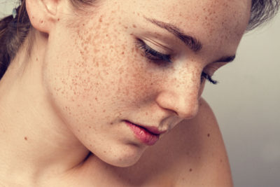 Illustration of Medication To Treat Freckles On The Face?