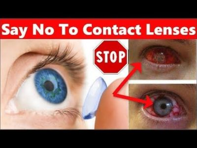 Illustration of Side Effects Of Using Contact Lenses?
