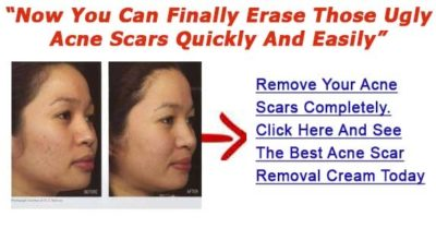 Illustration of Skin Care To Get Rid Of Acne Scars?