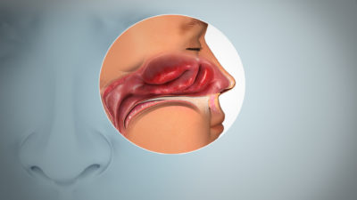 Illustration of The Nose Can't Smell