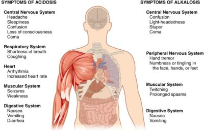 Illustration of Stomach Nausea And Respiratory Tract Disturbed?