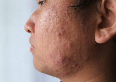 Illustration of How To Deal With Acne Hidden In The Skin?