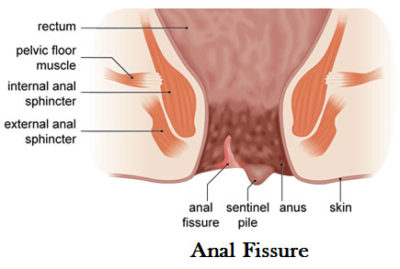 Illustration of Pain Around The Anus Is Like Being Pricked By A Needle After A Bowel Movement?