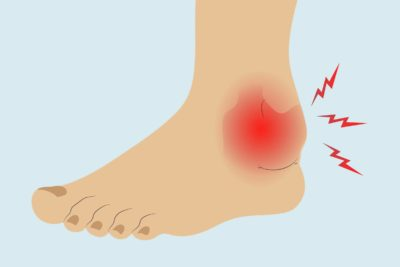 Illustration of There Was A Lump In The Ankle And The Right Ankle Felt Hot?