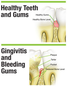 Illustration of The Cause Of The Gums Suddenly Bleed When I Wake Up?