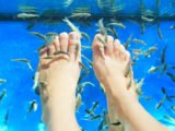 How To Treat Bleeding Fish Under Your Feet?