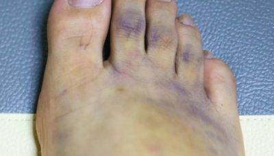 Illustration of The Blood Turned Blue In The Left Foot After It Was Sorted Because Of A Sprain?