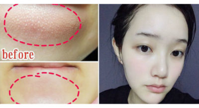 Illustration of How To Get Rid Of A Bump On The Cheek?