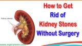 Treatment Of Kidney Stones Without Surgery?