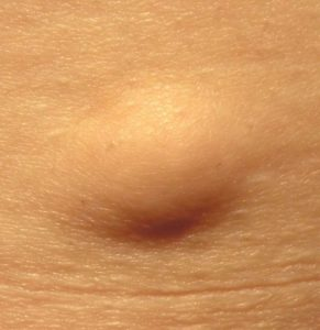 Illustration of Why In The Armpits Often Appear Soft Lumps?