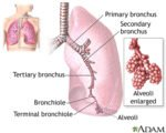 Stomach Enlarges And Difficulty Breathing In Sufferers Of Fluid Buildup In The Lungs?