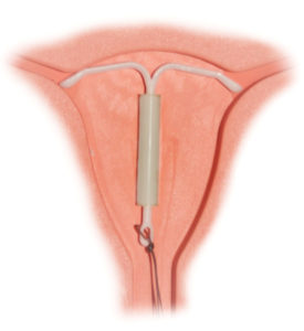 Illustration of Can IUD Contraception Be Installed If The Uterus Is Short?