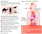 Does Coughing Can Transmit Corona Virus