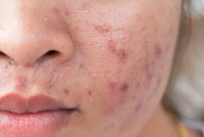 Illustration of How To Get Rid Of Reddish Acne Scars?
