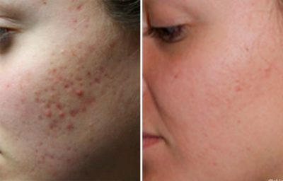 Illustration of Hydroquinone Dose To Get Rid Of Acne Scars?