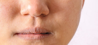 Illustration of The Use Of Supplements To Deal With Dull Skin?