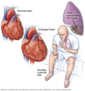Illustration of What Are The Causes And Symptoms Of Weak Heart?