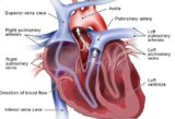 Causes Of Shortness Of Breath And Low Blood Pressure In Stroke Patients?