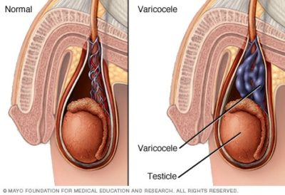 Illustration of There Are Like Veins Protruding In The Scrotum When Pressed?