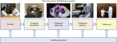 Illustration of Regarding The Preparation Before Doing Cancer Radiotherapy?
